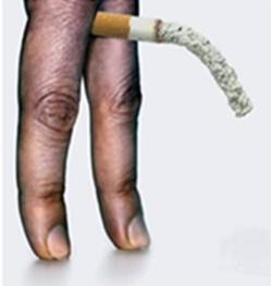 Fumatul dăunează grav mărimii penisului şi satisfacţiei sexuale - CSID: Ce se întâmplă Doctore?